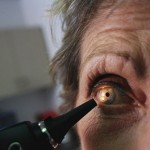 cataract surgery treatment prevention